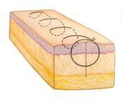 suturas: Imagem que ilustra um Chuleio simples de