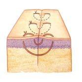Imagem que ilustra um ponto Donatti ou U vertical de suturas