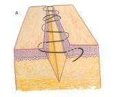 Imagem que ilustra um Ponto intradérmico de suturas