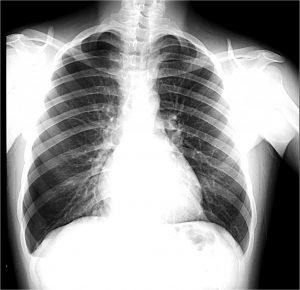 Dor Torácica - Raio-X - Pneumotórax - Sanar