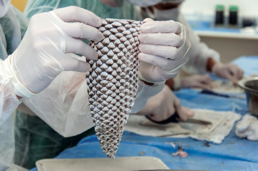 Pele de Tilápia para Tratamento de Queimaduras - Sanar