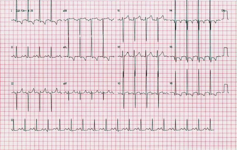 Sokolow para diagnóstico de sobrecarga de ventrículo esquerdo – Sanar Medicina