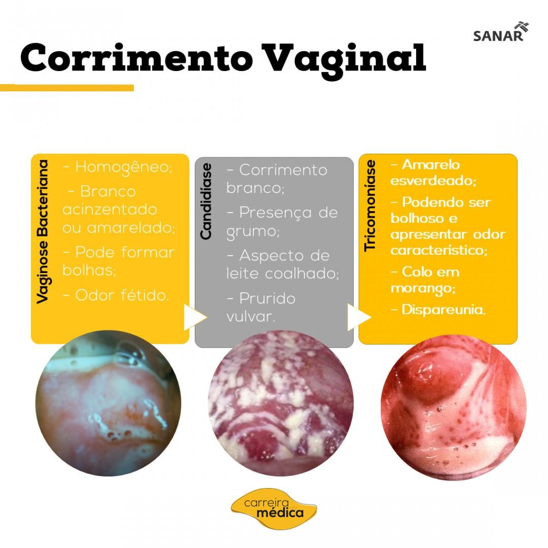 Dica de Ginecologia: Resumo de corrimento vaginal - Sanar