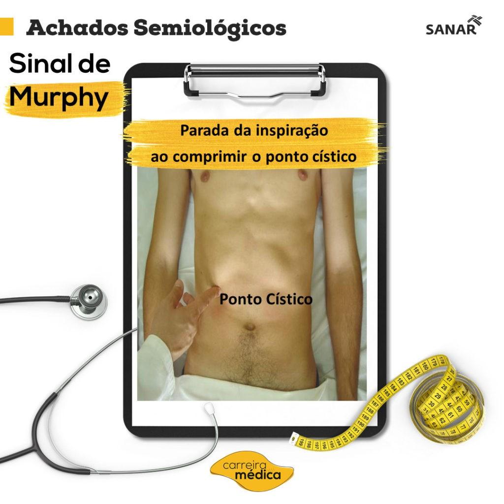 Sinal de Murphy - Sanar Medicina