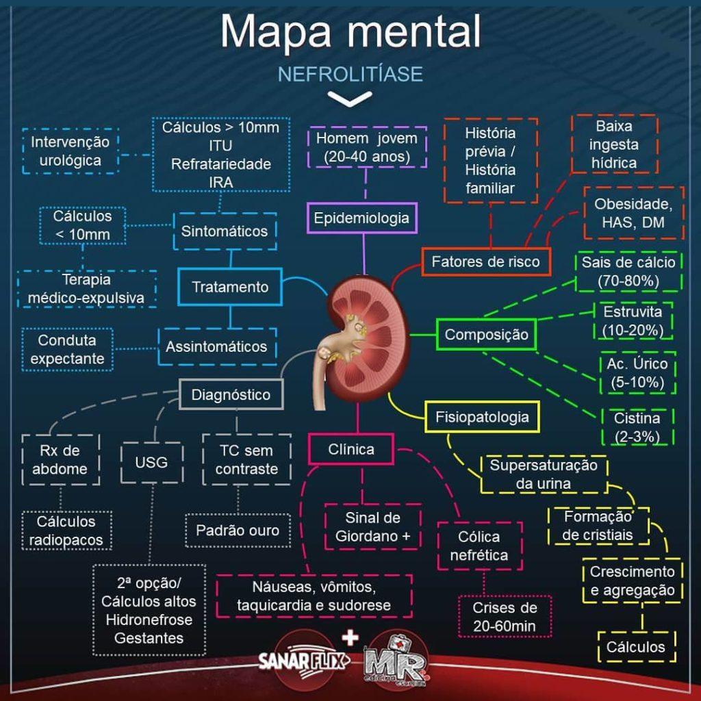 Mapa mental de nefrolitíase - Sanarflix