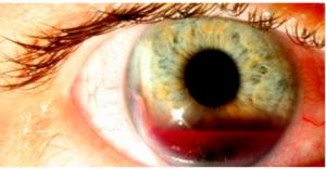 Imagem real de um paciente com Hifema.