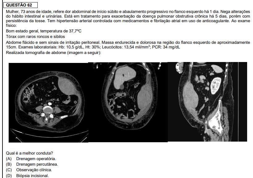 Questão de cirurgia da prova de residência médica da FMUSP 2020 - Sanar Medicina