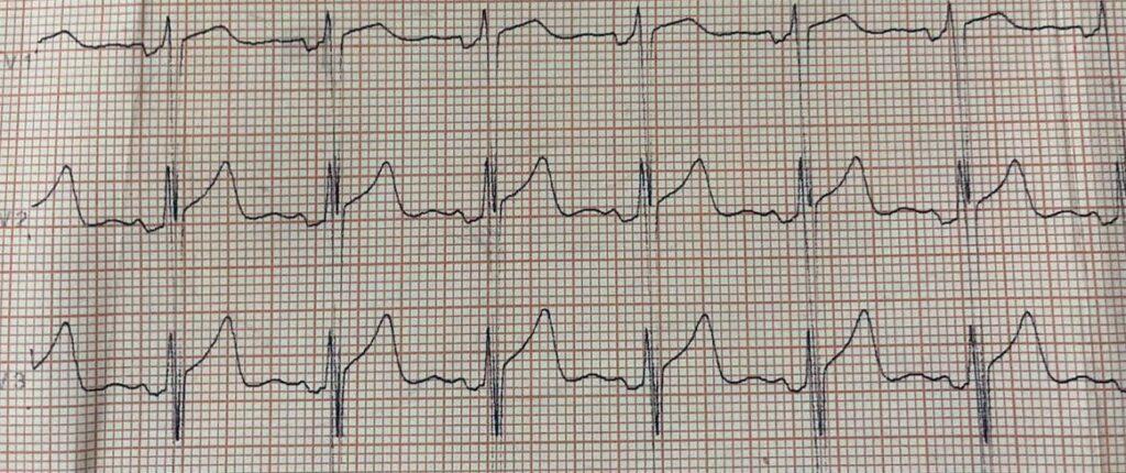 ECG com Supra de ST - Sanar Medicina
