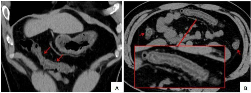 Figura 3: As imagens tomográficas coronal (A) e axial (B) do abdome revelaram edema da parede intestinal no cólon ascendente distal, cólon transverso e cólon proximal no cólon descendente (seta vermelha), sem exsudação no espaço circundante. A ampliação da imagem local da imagem axial (B, moldura vermelha) mostra que a parede intestinal do cólon está edemaciada, em camadas, e os vasos mesentéricos circundantes estão levemente dilatados.