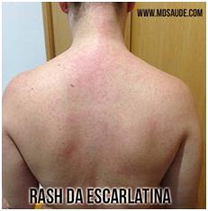 Rash da escarlatina - Sanar Medicina