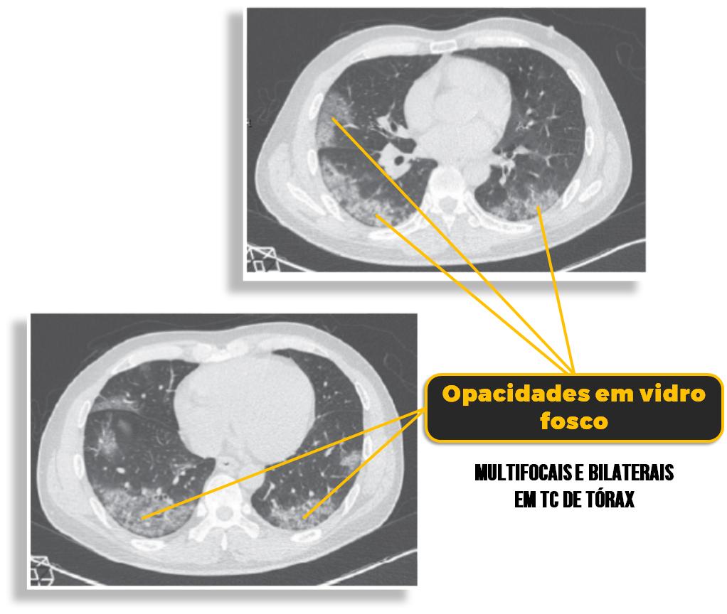 covid-19-coronavirus-radiologicos-drogas-indicadas-sintomaticos-radiografia
