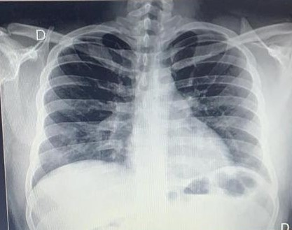 Raio-X de tórax - Caso Clínico de Covid-19 - Sanar Medicina