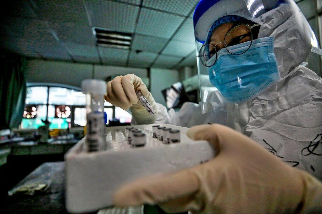 Estudiosos afirmam que presença do vírus no sêmen pode ser até mais comum do que se imagina