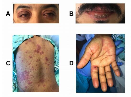 Apresentações da Síndrome inflamatória multissistêmica em adulto com COVID-19