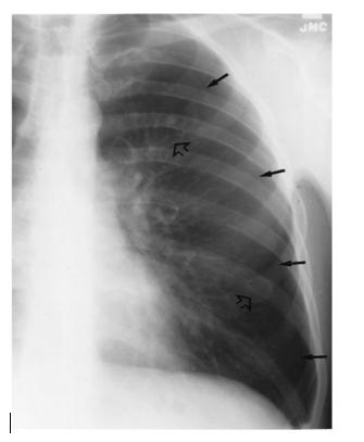 Figura 2. Linha pleural visceral em pneumotórax. (Fonte: BRANT.  Fundamentos de Radiologia).