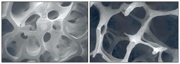Indivíduo normal (painel esquerdo) e um paciente com osteoporose (painel direito)
