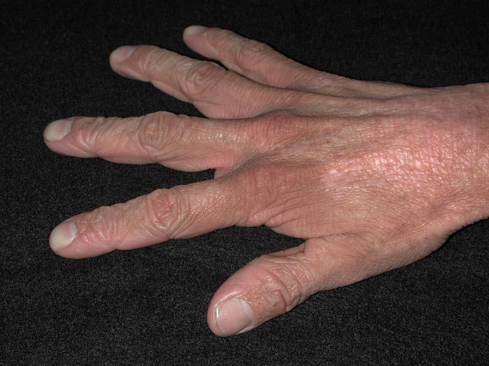 eczema de contato