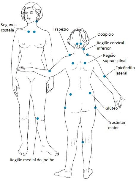 fibromialgia - tender points silhueta
