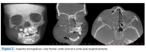 Aspectos-clínicos-e-tomográficos-do-linfoma-de-Burkitt-em-paciente-pediátrico