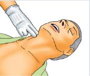 Paciente sem pulso em parada cardiorrespiratória