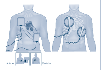 Parada cardíaca por fibrilação