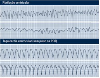PCR Fibrilação ventricular
