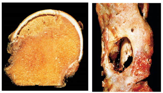 Na primeira imagem, cabeça femoral com área de necrose óssea amarelada em formado de cunha. Na segunda imagem, ressecção de fêmur num paciente com osteomielite em fase de drenagem.