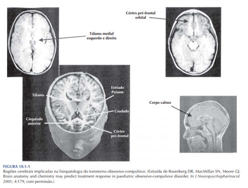 Regiões Cerebrais implicadas na fisiopatologia da TOC